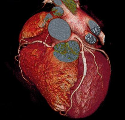 Cta Coronary Arteries additionally Cta Coronary Arteries in addition Cta Coronary Arteries besides  on 1989 kawasaki bayou 220 wiring diagram